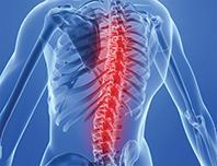 Co je to osteochondróza páteře?